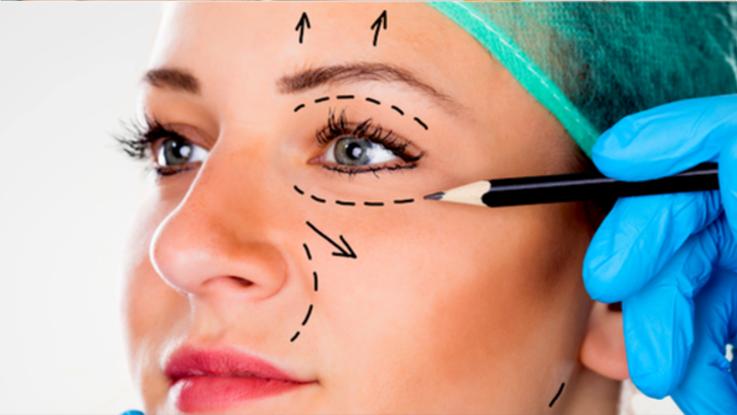 Plastische ooglidcorrectie