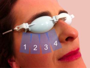 Behandeling voor droge ogen