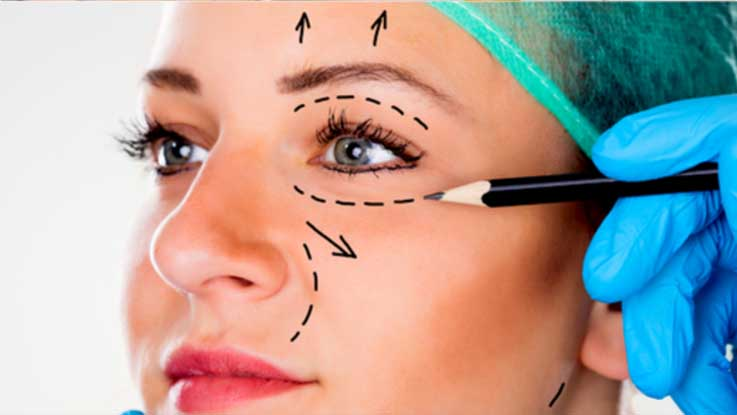 Plastische-ooglidcorrectie